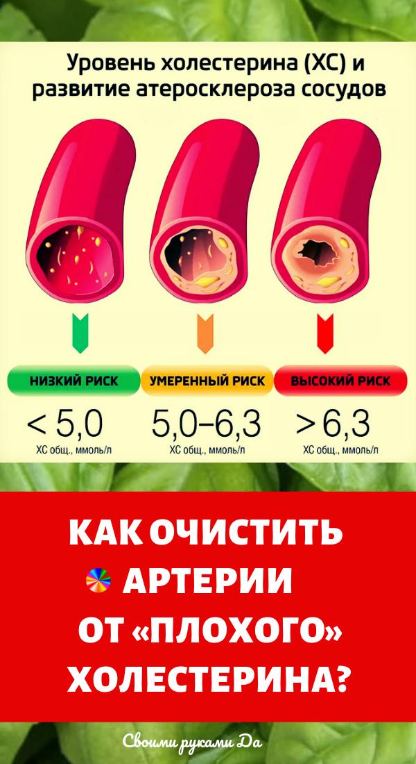 Здоровье и народные средства: как очистить артерии от «плохого» холестерина?