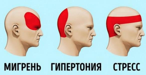 Как уменьшить головную боль без таблеток. 14 быстых способов