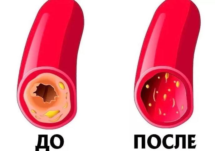 Как почистить сосуды и кровь в домашних условиях. Рецепт 7 стаканов