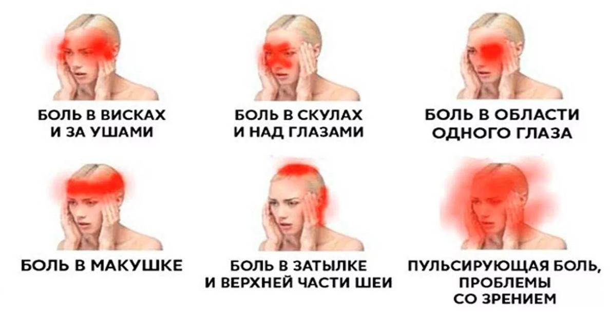 Как избавиться от головной боли без таблеток за 5 минут...