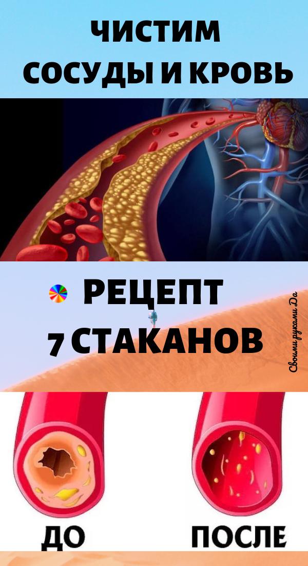 Здоровье и народные средства: чистим сосуды и кровь. Рецепт 7 стаканов.