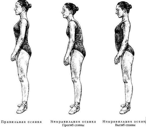 Упражнение для коррекции дегенеративной осанки...
