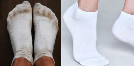 Как отстирать белые носки от черной подошвы. Идеи, советы и мастер класс своими руками