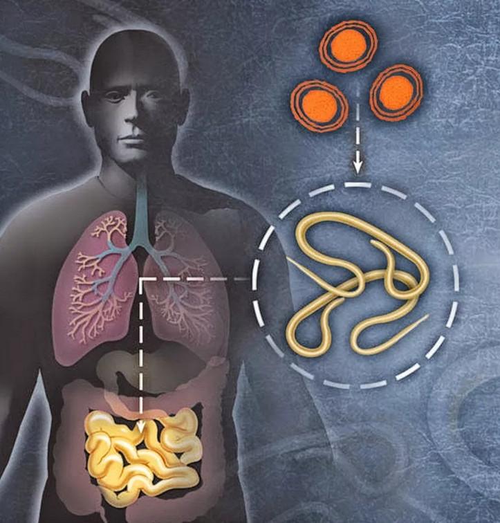 Наше здоровье и глисты. Как избавиться от паразитов без таблеток?