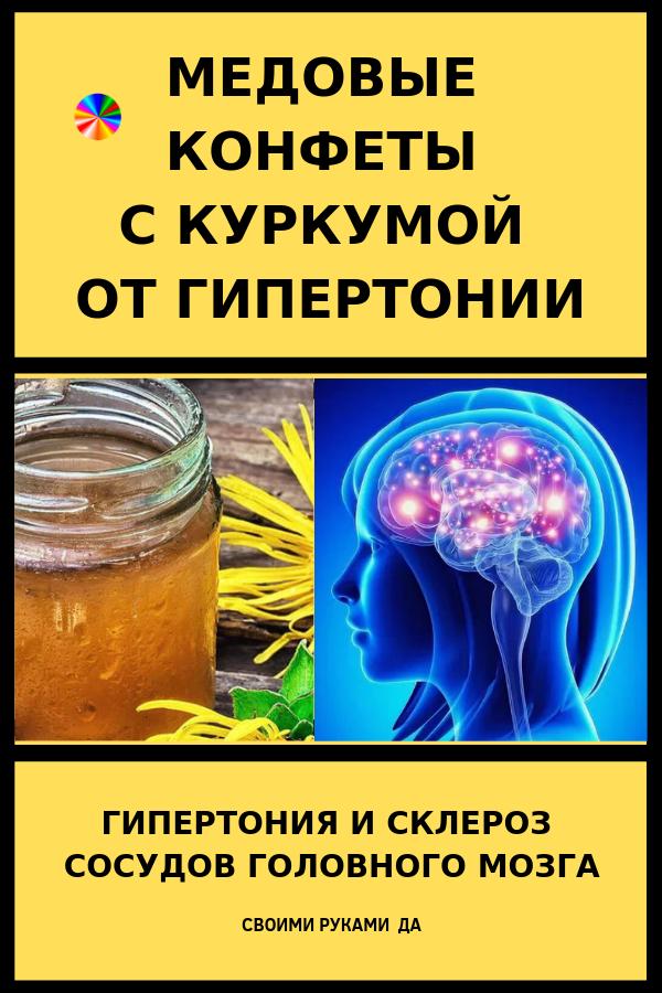 По многолетним наблюдениям многих целителей, данное средство является одним из лучших как от склероза сосудов головного мозга, так и от гипертонии. Рецепты народной медицины при гипертонии и склерозе сосудов головного мозга.