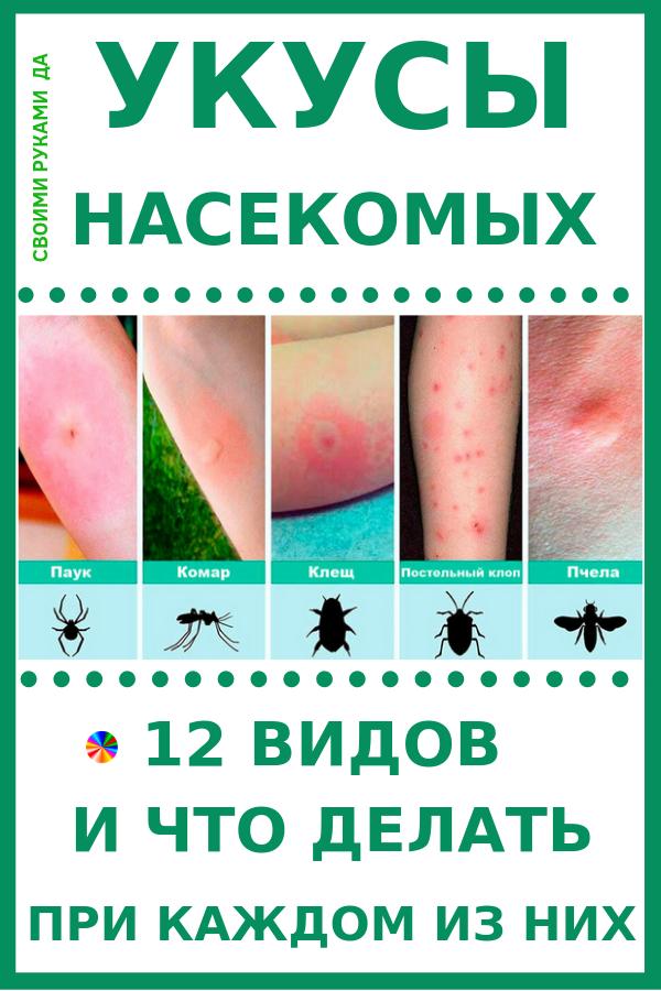 Укусы насекомых: 12 видов и что делать при каждом из них