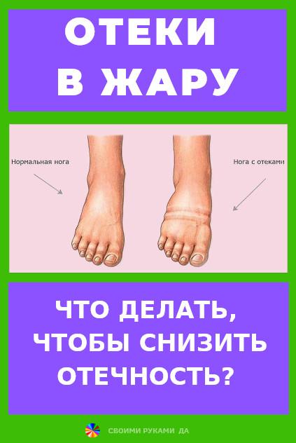 Здоровье: Отеки летом, почему отекают ноги и что можно сделать...