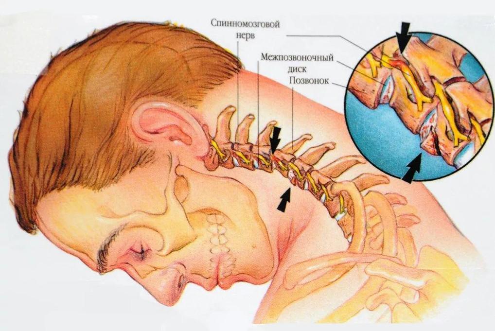 Мышечные зажимы шеи и спины: снятие боли
