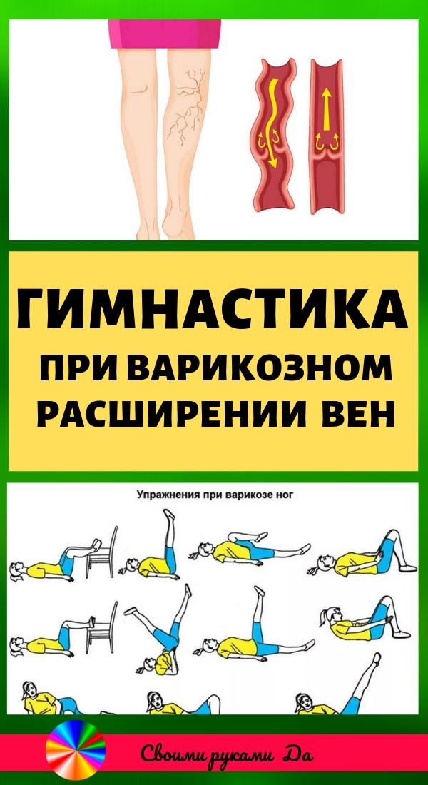 Ежедневная гимнастика при варикозном расширении вен. Красота и здоровье в домашних условиях