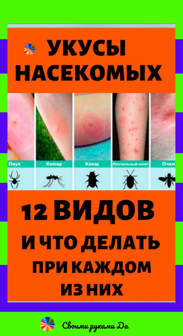 Укусы насекомых: 12 видов и что делать при каждом из них в домашних условиях + народные рецепты