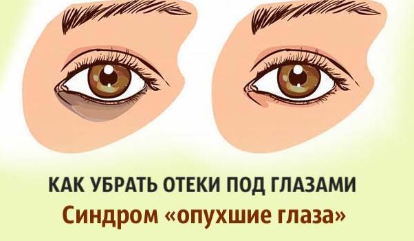 Как убрать отеки под глазами. Синдром «опухшие глаза»