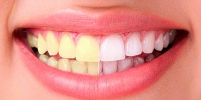 Белые и здоровые зубы: 8 хитростей дают 100% результат