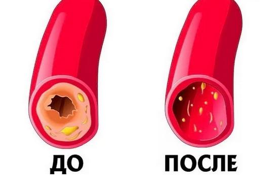 Как почистить сосуды и кровь: рецепт 7 стаканов. Простой, бабушкин метод, нужно