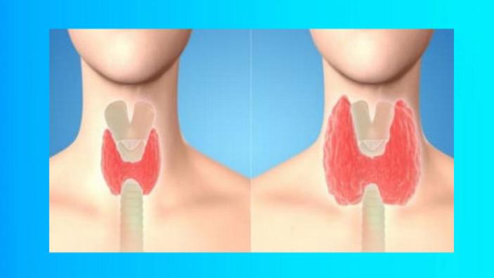 Как привести щитовидку в ″норму″ за 8 дней с помощью семян кориандра